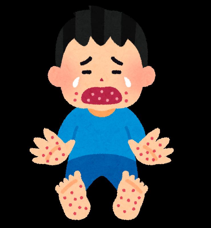 帯状疱疹はうつるの?症状・原因・予防法まとめ
